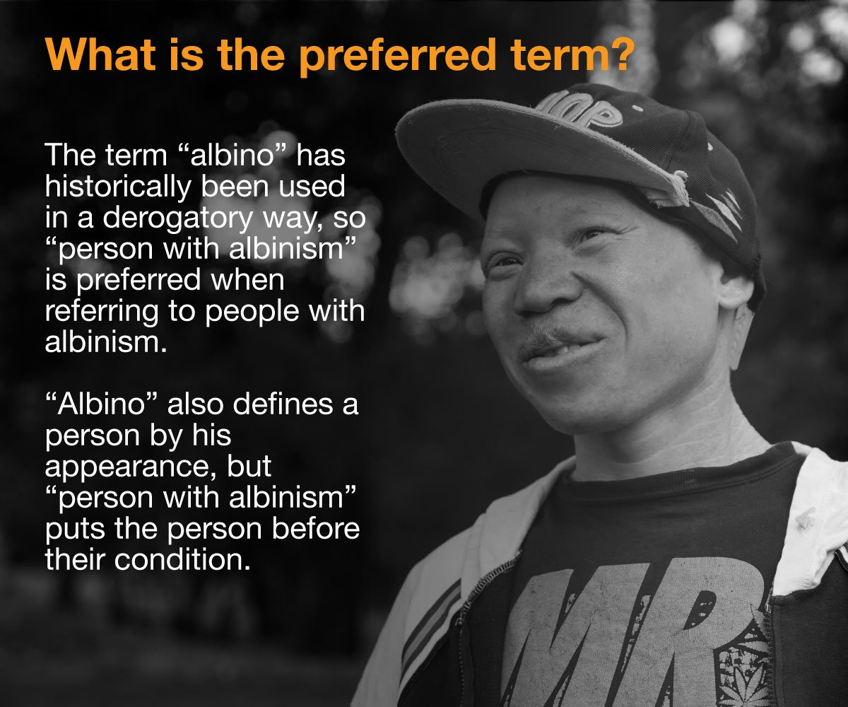 What is albinism and what causes it? We answer your questions