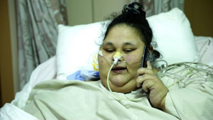Doctors deny allegations that super obese Egyptian woman was not treated well
