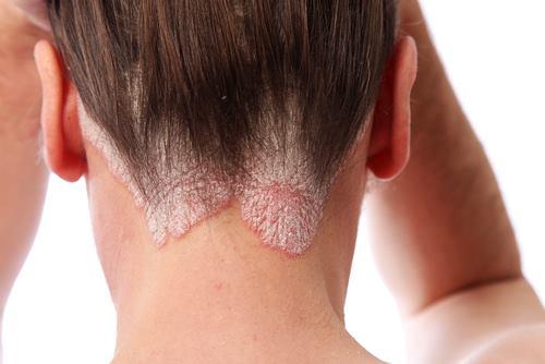 Hati-hati, Gejala Penyakit Kulit Psoriasis - AnekaNews.net