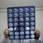 China's cancer patients gamble on gray market