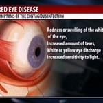 "Health Focus: Dealing with conjuctivitis or ""red eye"" disease"