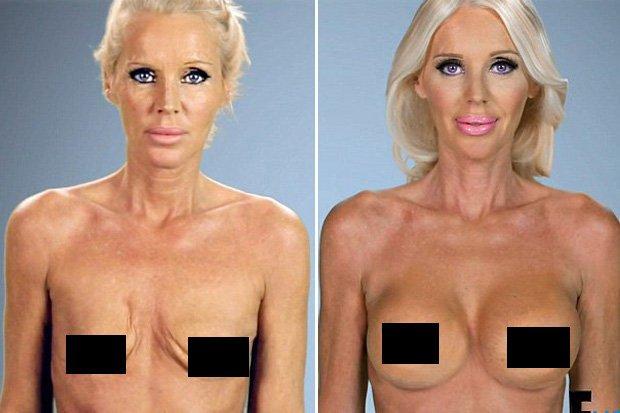 Are boob jobs safe pics
