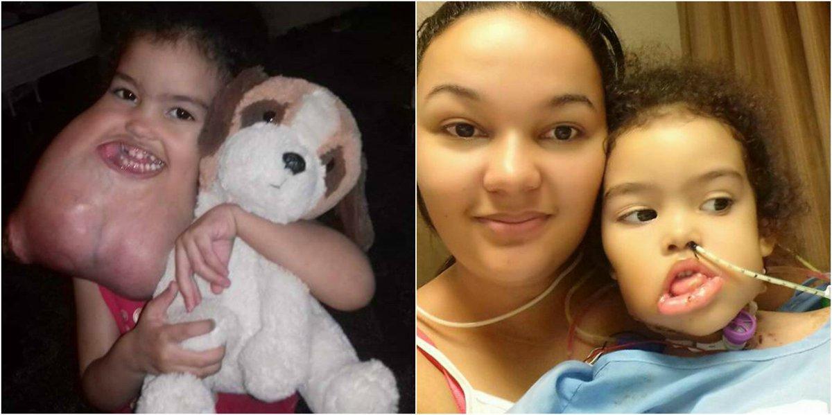 Shreveport surgeons remove rare tumor from girl's face -   WBTV Charlotte
