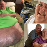 Antique dealer, 57, has surgery to remove 63kg tumour from his stomach – which started as an ingrowing hair