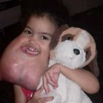 US surgeons remove rare facial tumor from Brazilian girl