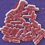 Study finds surprising amount of superbug infections in Chinese hospitals