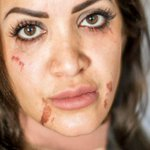 Woman feels 'butchered' after horrifying wax treatment at Auckland salon