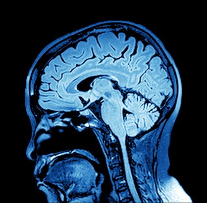 It's #WorldEncephalitisDay. Encephalitis is a rare but serious condition in which the brain becomes inflamed. More: https://t.co/WgM6uzw3s0