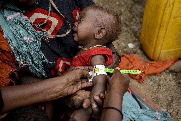 아프리카 내전에 대기근까지…2160만명 아사 위기 https://t.co/f1N9IoS6N3