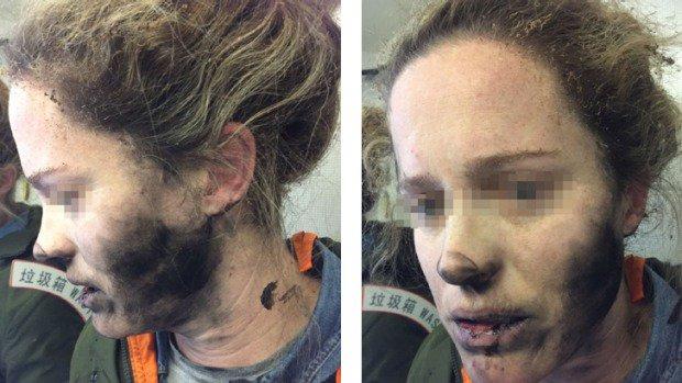 Çin Malı Kablosuz Kulaklık Yüzünde Patladı