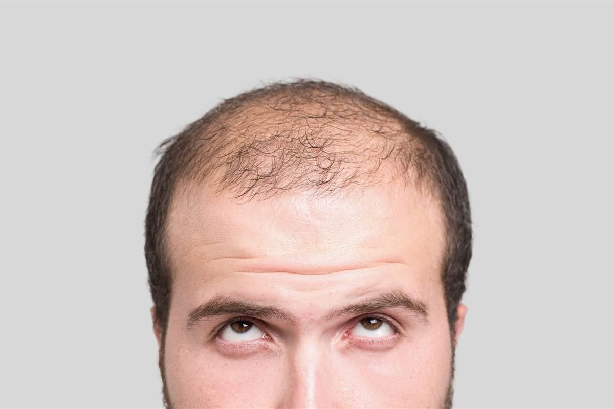 Baldness drugs may hurt manhood