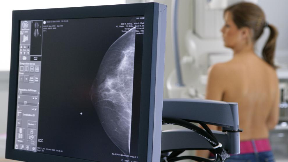 La ciencia estrecha el cerco al cáncer de mama https://t.co/OSBNbVBCVh https://t.co/Oi0Iy7SSef