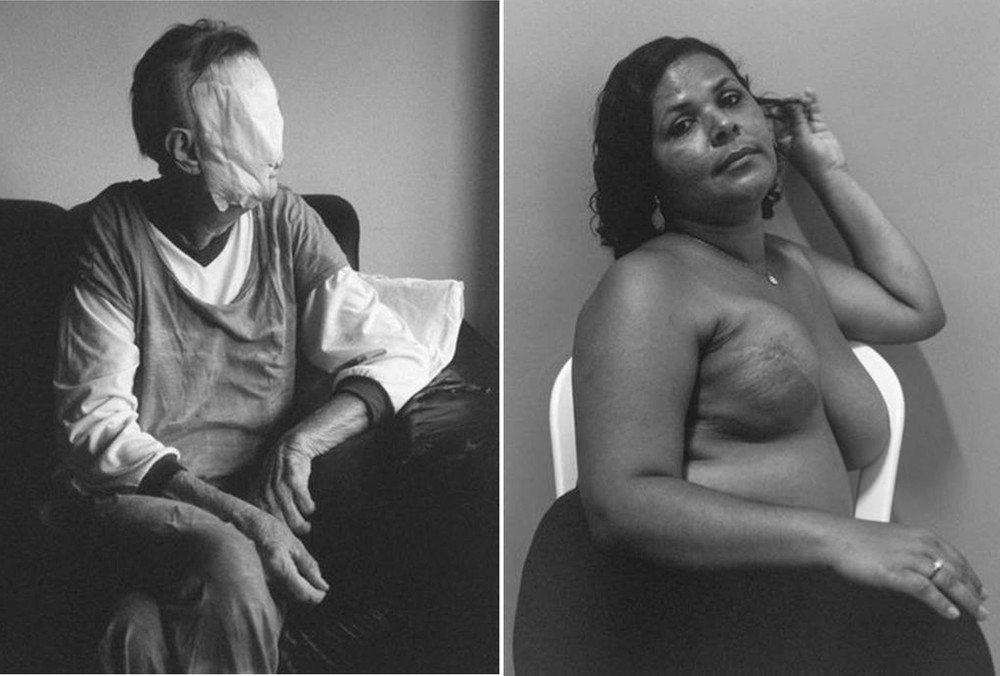 'Retratos de afeto': obra revela intimidade de pessoas com câncer https://t.co/PBlP9nXdoE #G1