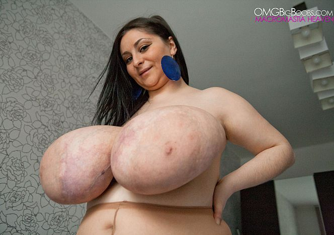 Alice Big Macromastia Breasts see more at QfYYylYtSf BKaoeZaFxW