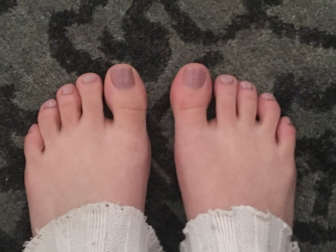 What do you guys think? Am I insane or my right foot is swollen? https://t.co/qPXbSARAM2