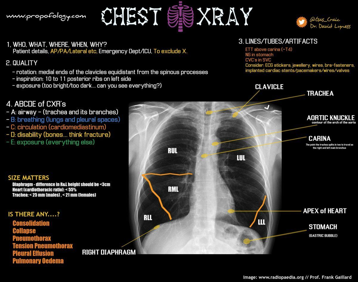 test Twitter Media - fantastic chest xray tutorial by @gas_craic https://t.co/r9Xhwdm1TS -ST https://t.co/M6tZxBTh4v
