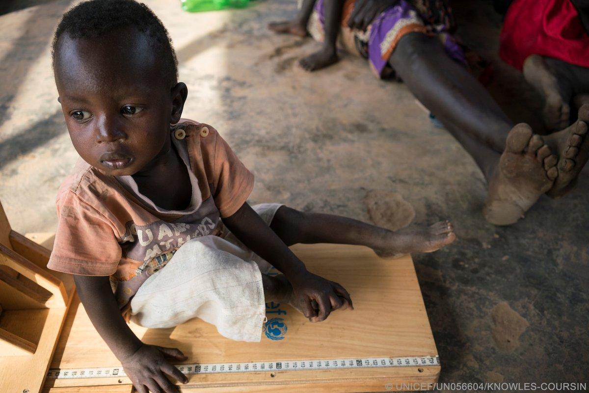 In photos: Looming famine in #SouthSudan, #Somalia, #Nigeria and #Yemen @GlblCtzn #4famines https://t.co/uqyYl1CSg5