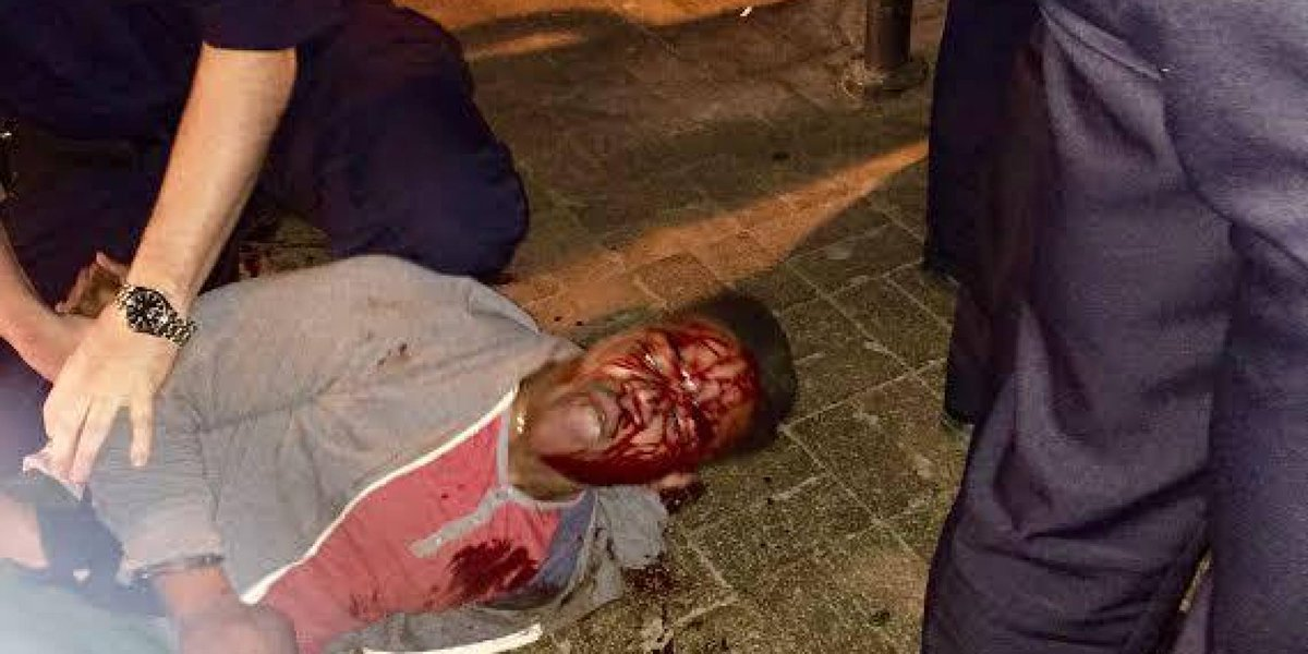 Black college student bloodied during arrest by state liquor agents. Yep, liquor agents. http://t.co/lSyTbaahLs http://t.co/tMLdvFUlsL