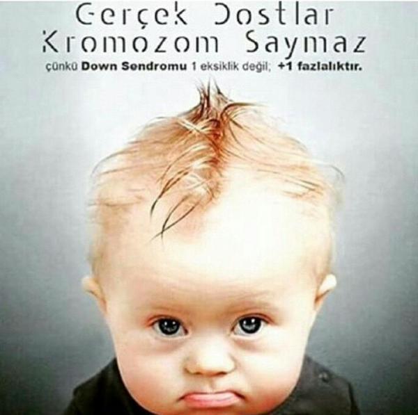 Bugün 21 Mart Dünya #DownSendromu Farkındalık Günü.  Down sendromu bir hastalık değil, genetik bir farklılıktır. http://t.co/Ofu8Pht42O