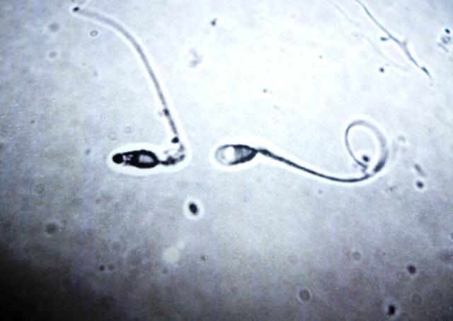 velikobritanii-nelzya-ispolzovat-spermu