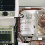 英ケンブリッジシャーの医療チームが、脳死ではなく心肺停止後のドナーから提供された心臓の移植手術を、欧州で初めて成功させました(英語記事) RT @BBCNews:http://t.co/GmKnzA1PQK http://t.co/AMNKEeCakI