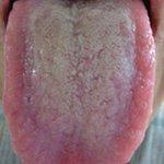 【キレイにしよう】舌の表面にできる白い汚れ がんリスクか http://t.co/W80au6Hfv9 「舌苔」が多い人は、口や喉のがんの原因になるとされる化合物「アセトアルデヒド」の口中濃度が高いことがわかりました。 http://t.co/ydCXkFbl83