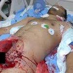 مرت ٤ أعوام علي تمثيل الجيش في جسد الشهيد علي المؤمن وهو حي و تركه ينزف في الشارع #البحرين #bahrain http://t.co/ocVatsG8Et