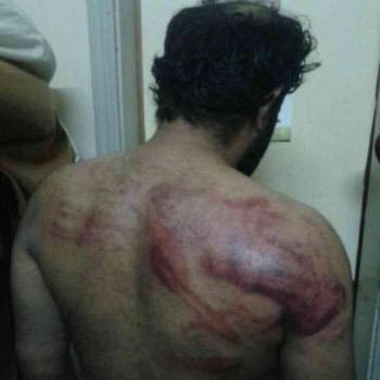 الصور توضح الانتهاكات الجسيمة التي حصلت للسجناء في البحرين؛لا زالت تصل أخبار تعرض المعتقلين للتعذيب #أغيثوا_سجناء_جو http://t.co/Ce47s9JaYQ