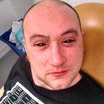 """""""@itele: Des gouttes dans les yeux pour voir dans le noir : première expérience réussie aux #USA http://t.co/iWfM4EW4Ff""""  Mdr cst nptq"""