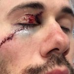 Well, Drew Miller had himself a rough night after taking a skate to the face.. http://t.co/IMantBMxK6 http://t.co/SaS8P3BOYs