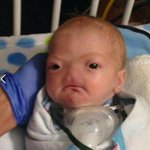 A rare disease means Eli was born without a nose - his story is going viral http://t.co/adKEmZmqIo Pic: Elis story http://t.co/cnDkALfPJG