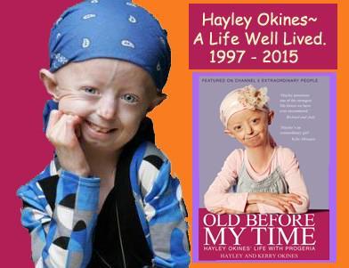 Hayley Okines ❤ (1997-2015)