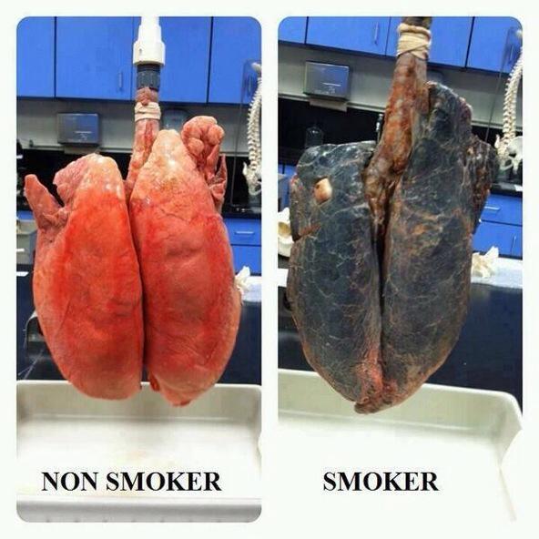 Lungs. Non smoker versus smoker http://t.co/GjrgqHxX0w
