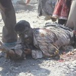 #Aleppo after ASSAD barrels bomb , no comment with this man pic !! http://t.co/iewmGFsKD5