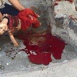 """#حزب_الله """" يذرف #دموع_التماسيح على #اليمن وينسى قتلاه ب #سوريا و #العراق #سياسة_النفاق #لبنان #سوريا #عاصفة_الحزم http://t.co/xtCb9wfOxs"""
