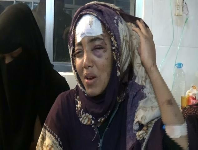 Asshar injured activist who lost her mother HaifaZawqari when #houthis bombed her house #Aden #HouthiCrimes #Yemen http://t.co/tvucKP9B7c