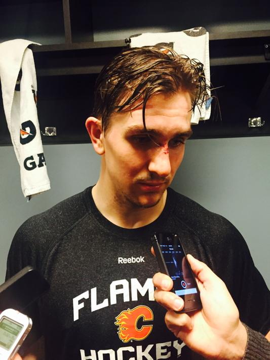 "Bloodied beak and all, Mikael Backlund just guaranteed a Game 6 win: ""There's no way we're losing at home."" http://t.co/HJfHgtJ4Ye"