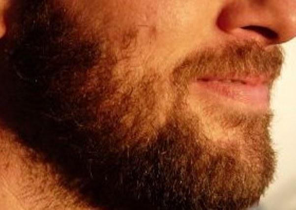 STUDY: Beards are filled with fecal bacteria and 'as dirty as toilets' http://t.co/iBkGqCXToP http://t.co/vFePj4h8C9