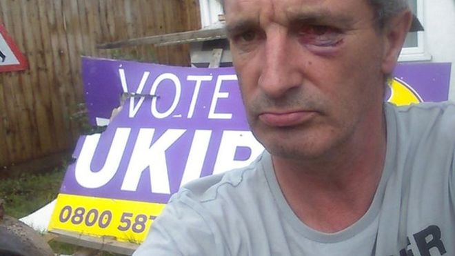UKIP supporter hurt in #Bournemouth placard confrontation http://t.co/VNscL1duGA http://t.co/LVAB17hkEp