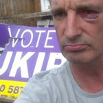 Man Punched In Face By Thugs For Supporting UKIP - Breitbart http://t.co/g84iKvWA1E http://t.co/dZq61An9qY