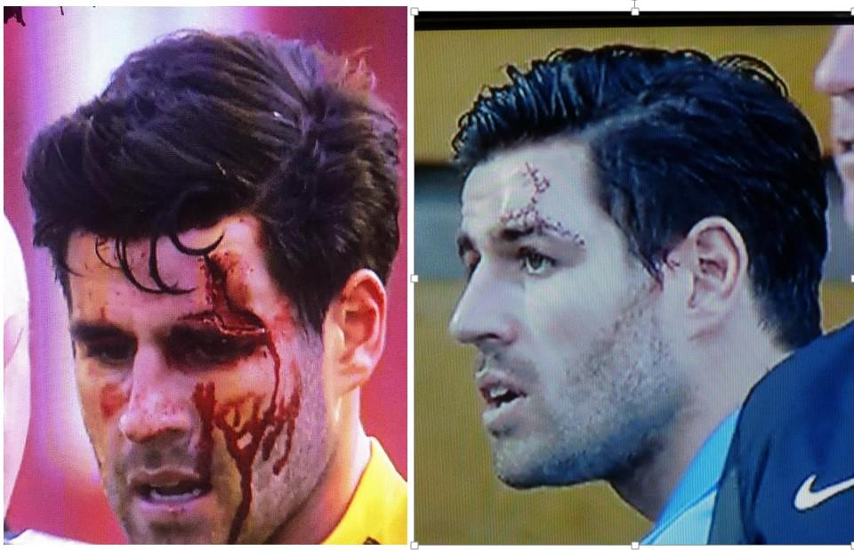 Michael Timlin returns after a wash and 15 stitches #ouch  #Stevenage vs #Southend http://t.co/Gxcq5hw9YG