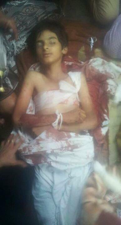 Children Hussam and Hamza shot by #Houthi snipers in #Taiz today. #HouthiCrimes RIP http://t.co/7bbKFU6iei