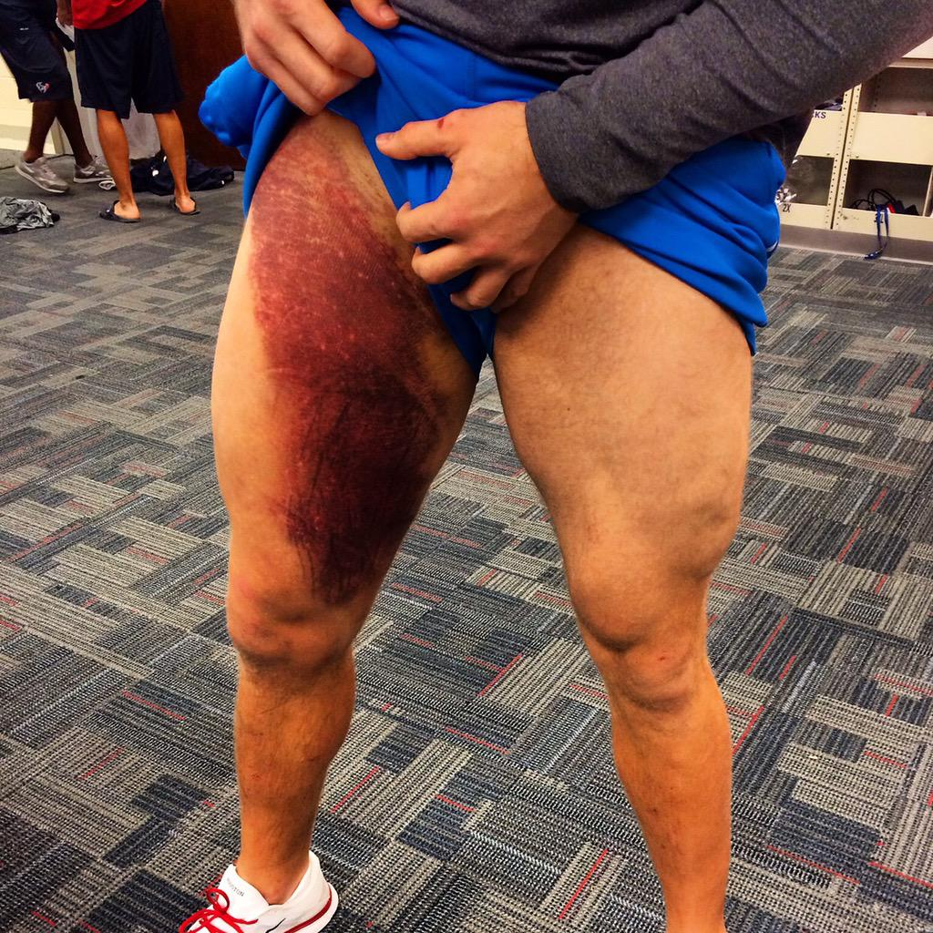 Jj Watt S Massive Bruise After The First Half Of The Bills