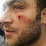 """AKPlilerin dövdüğü esnaf İleriye konuştu:""""Vekilimizle nasıl tokalaşmazsın"""" diye saldırdılar. http://t.co/U64RlRGLLq http://t.co/bfhCw3DlCD"""