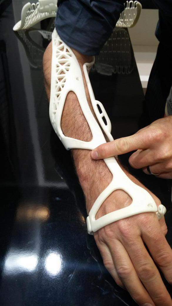 The first patient to ever have a shower with a 3D printed cast on a broken arm. @3dsystemscorp #digitalhealth http://t.co/Dq73th4dUD
