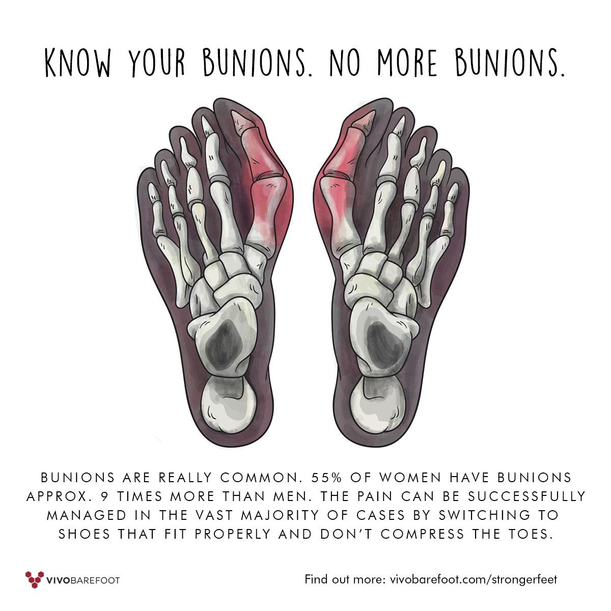 Bunions are common.. Wear shoes that fit properly and don't compress your feet http://t.co/XCkw7J25Eq #forfootsake http://t.co/1mpwwsi7Cr