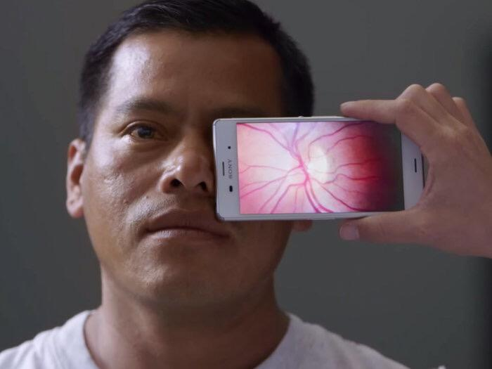 Disrupting Optometry: Smartphones Are So Smart They Can Now Test Your Vision http://t.co/3YbsK4dhNt via @nprnews http://t.co/2Ld8maRsna