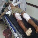صور أولية لجرحى جريمة العدوان السعودي الأمريكي على شارع الخمسين بني حوات صنعاء #اليمن http://t.co/DtPrukwWyA