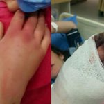 Regina woman will lose hand after ER did not treat her, hospital sorry for experience http://t.co/GVZmvaBZTL #cbcsk http://t.co/CE3Rb584X5