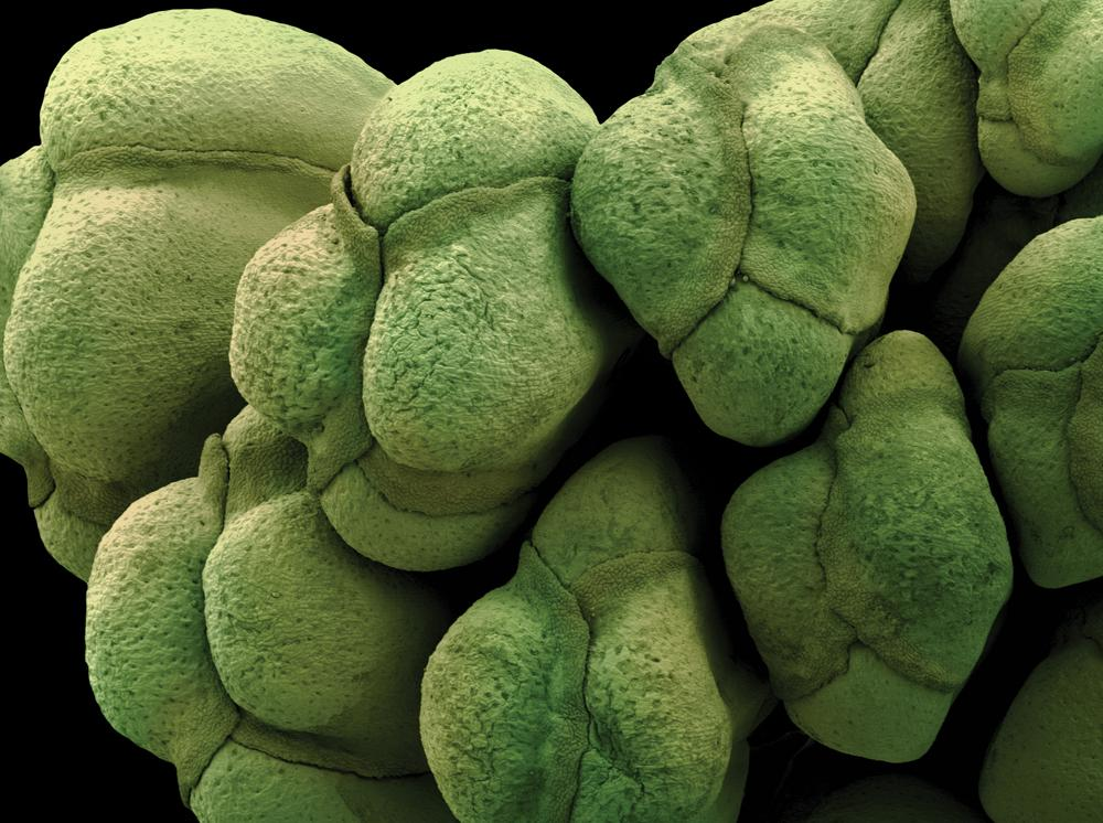 In honor of #FreshVeggiesDay, see if you can guess these #microscopic veggies! @DiscoverMag: http://t.co/oPXqSShgaQ http://t.co/ST62y9OETB